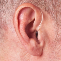 ISH2015_preprint   Hearing   Otology